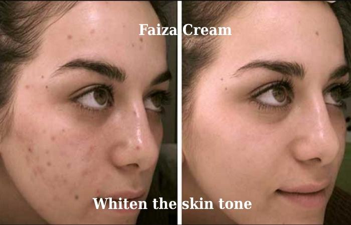 Features of faiza Cream