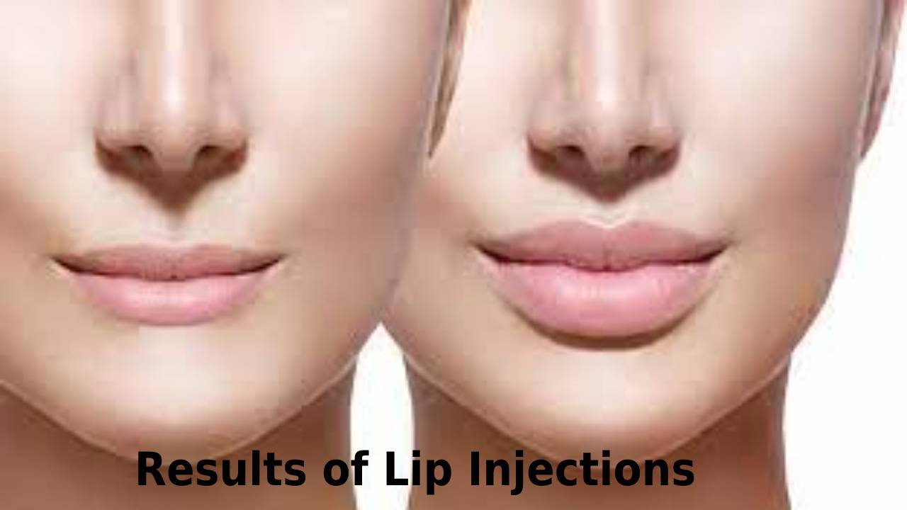 Results of Lip Injections